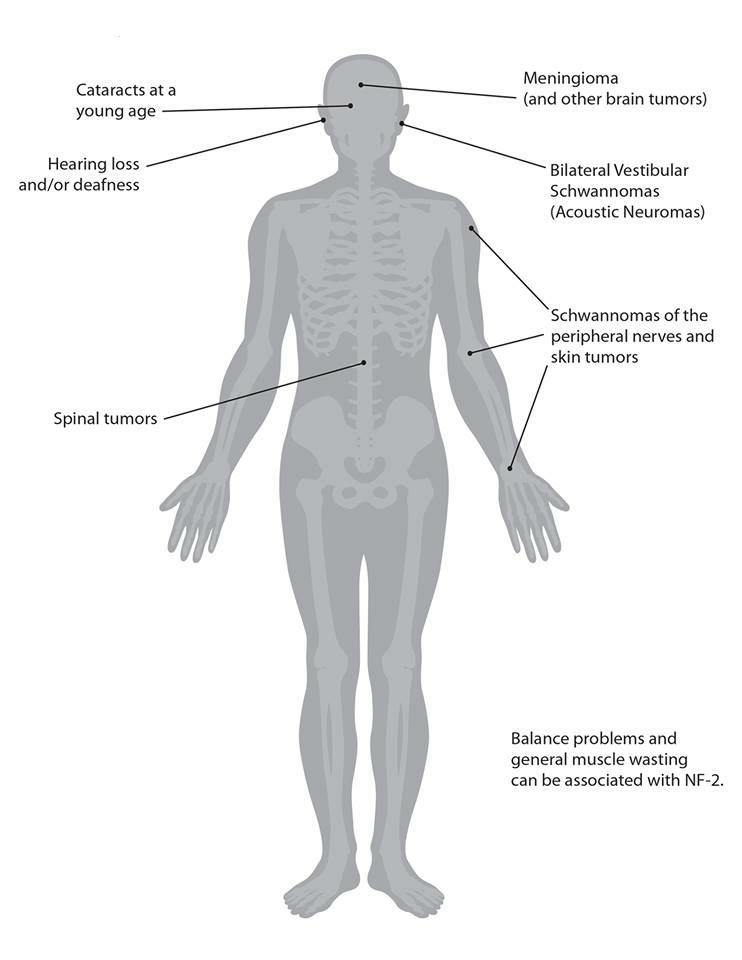 NF2 Bodysheet